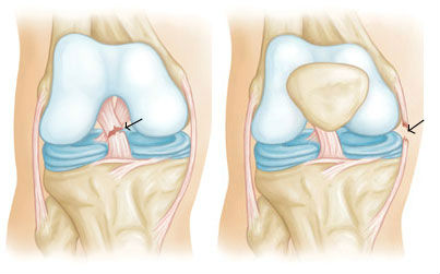 Повреждения связок коленного сустава - причины симптомы диагностика и лечение
